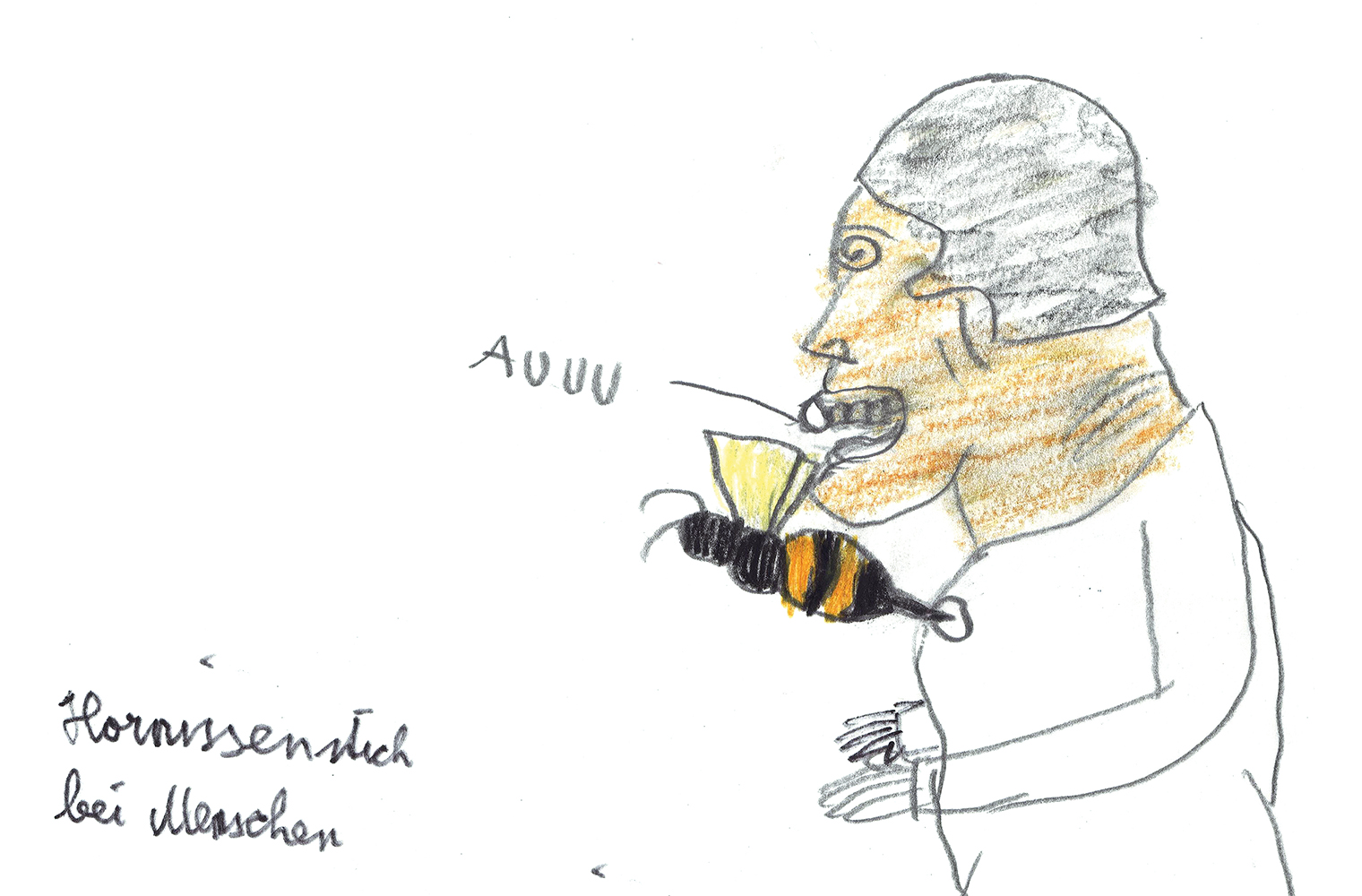 """Die Zeichnung zeigt einen Menschen, der von einer Hornisse in die Brust gestochen wird. Das Wort """"Au"""" und die Schrift """"Hornissenstich bei Menschen""""..."""